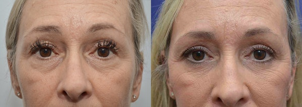 Eyelid Surgery Gallery - Patient 4588588 - Image 1