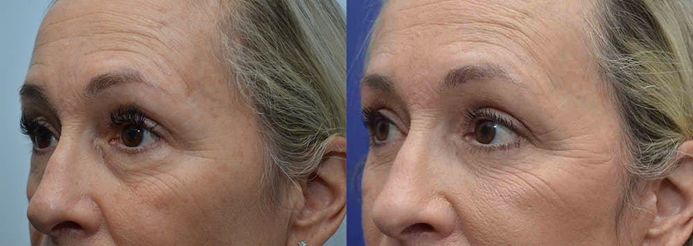 Eyelid Surgery Gallery - Patient 4588588 - Image 2