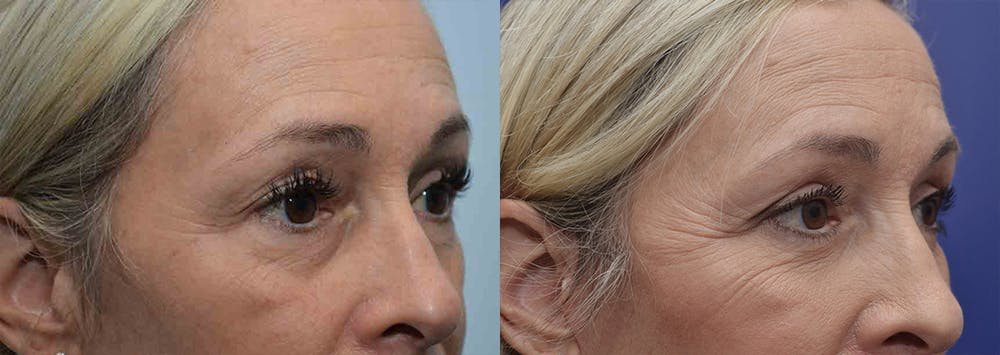 Eyelid Surgery Gallery - Patient 4588588 - Image 3