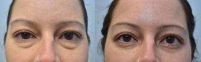 Eyelid Surgery Gallery - Patient 4588593 - Image 11