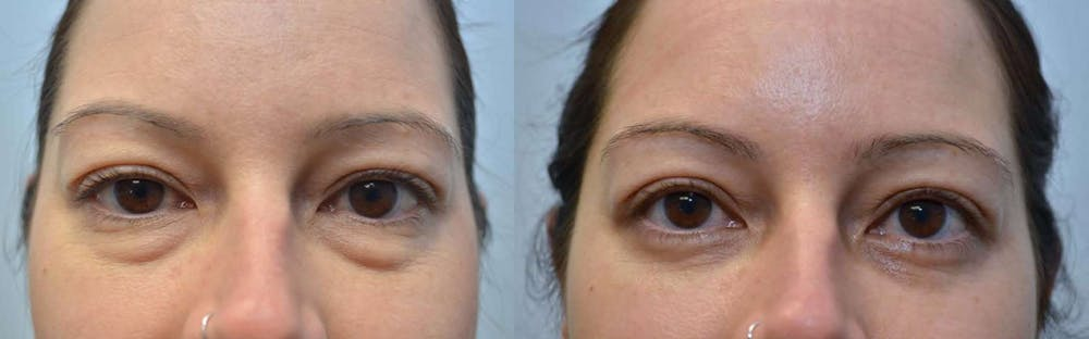 Eyelid Surgery Gallery - Patient 4588593 - Image 1