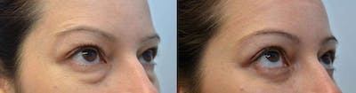 Eyelid Surgery Gallery - Patient 4588593 - Image 2