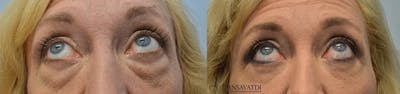 Eyelid Surgery Gallery - Patient 4588600 - Image 1