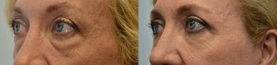 Eyelid Surgery Gallery - Patient 4588600 - Image 2