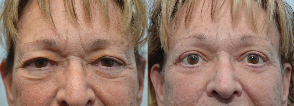 Brow Lift (Forehead Lift) Gallery - Patient 4588640 - Image 1