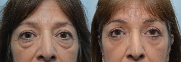 Eyelid Surgery Gallery - Patient 4588606 - Image 1