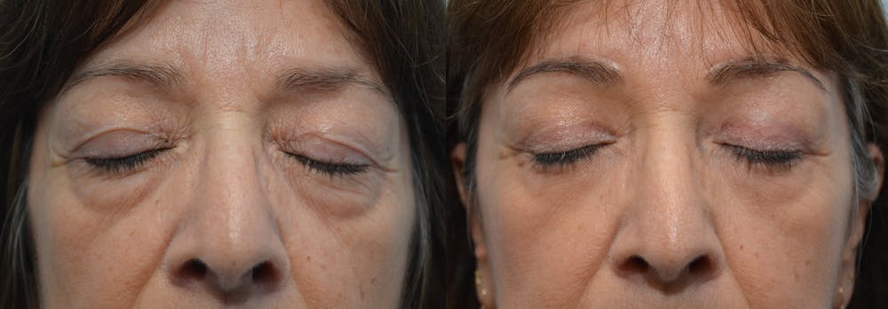 Brow Lift (Forehead Lift) Gallery - Patient 4588642 - Image 2