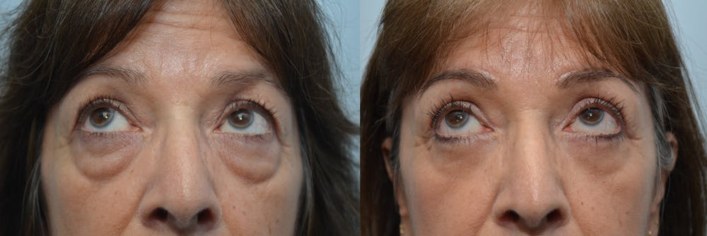 Brow Lift (Forehead Lift) Gallery - Patient 4588642 - Image 3