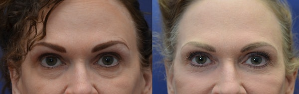 Eyelid Surgery Gallery - Patient 4588607 - Image 1