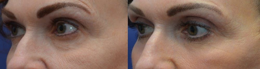 Eyelid Surgery Gallery - Patient 4588607 - Image 2