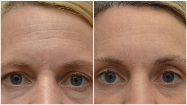 Brow Lift (Forehead Lift) Gallery - Patient 4588631 - Image 1