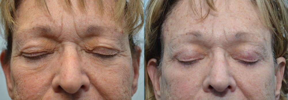 Brow Lift (Forehead Lift) Gallery - Patient 4588640 - Image 2