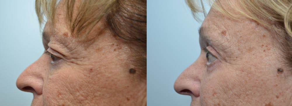 Brow Lift (Forehead Lift) Gallery - Patient 4588640 - Image 3
