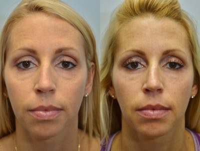 Facial Revolumizing (Fat Transfer) Gallery - Patient 4631221 - Image 1
