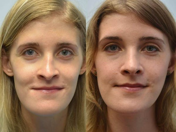 Rhinoplasty (Nose Reshaping) Gallery - Patient 4588552 - Image 1