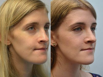 Rhinoplasty (Nose Reshaping) Gallery - Patient 4588552 - Image 2