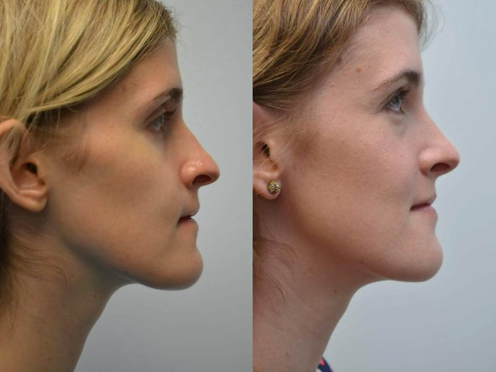 Rhinoplasty (Nose Reshaping) Gallery - Patient 4588552 - Image 3