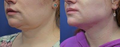 Facetite™: Non-Surgical Facelift Gallery - Patient 4701919 - Image 1