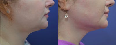 Facetite™: Non-Surgical Facelift Gallery - Patient 4701919 - Image 4