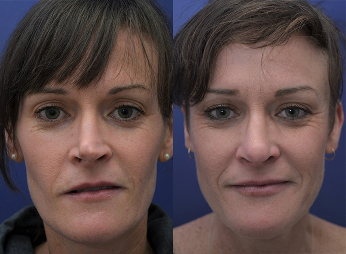 Revision Rhinoplasty Gallery - Patient 5063084 - Image 1