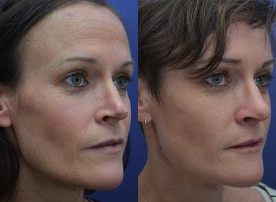 Revision Rhinoplasty Gallery - Patient 5063084 - Image 2