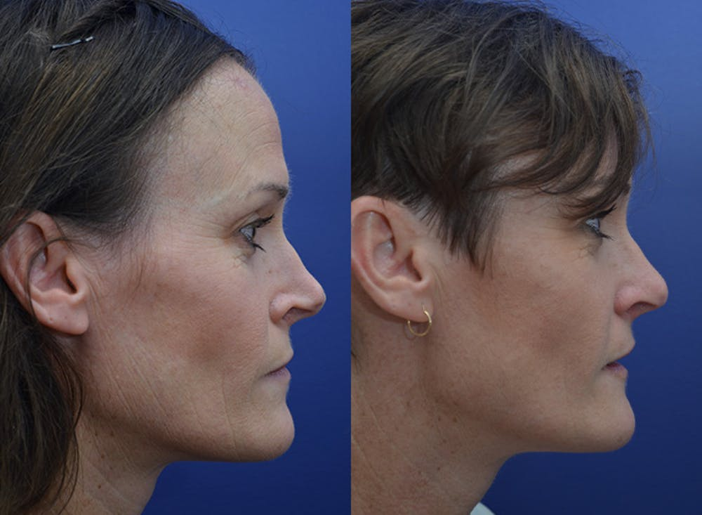 Revision Rhinoplasty Gallery - Patient 5063084 - Image 3