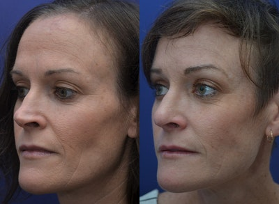 Revision Rhinoplasty Gallery - Patient 5063084 - Image 4