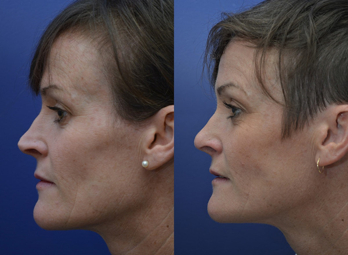 Revision Rhinoplasty Gallery - Patient 5063084 - Image 5