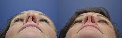 Revision Rhinoplasty Gallery - Patient 5063084 - Image 6
