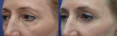 Eyelid Surgery Gallery - Patient 4588563 - Image 2