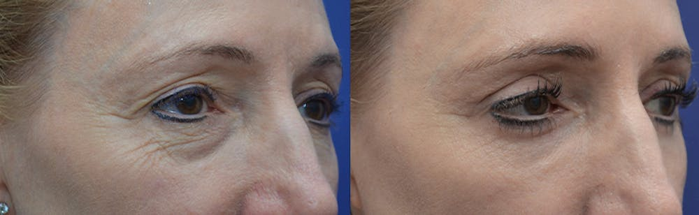 Eyelid Surgery Gallery - Patient 4588563 - Image 3