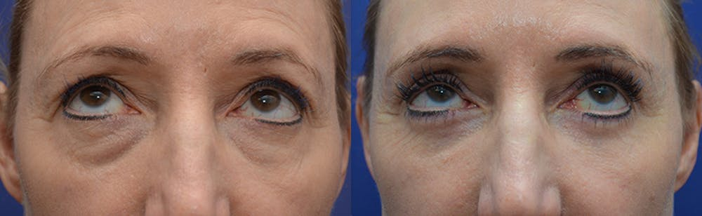 Eyelid Surgery Gallery - Patient 4588563 - Image 4