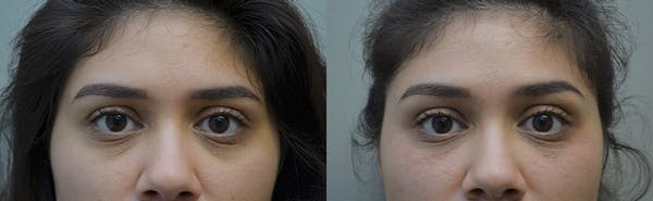 Under Eye Rejuvenation Gallery - Patient 5063152 - Image 1