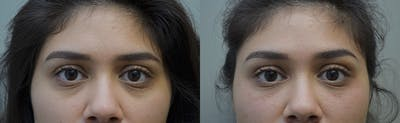 Under Eye Rejuvenation Gallery - Patient 5063152 - Image 1