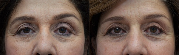 Upper Eyelid Ptosis Repair Gallery - Patient 5063164 - Image 1