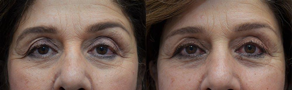 Upper Eyelid Ptosis Repair Gallery - Patient 5063164 - Image 1