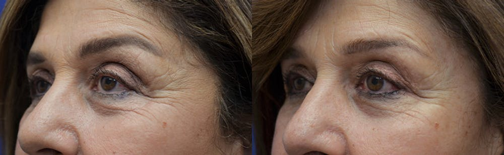 Upper Eyelid Ptosis Repair Gallery - Patient 5063164 - Image 2