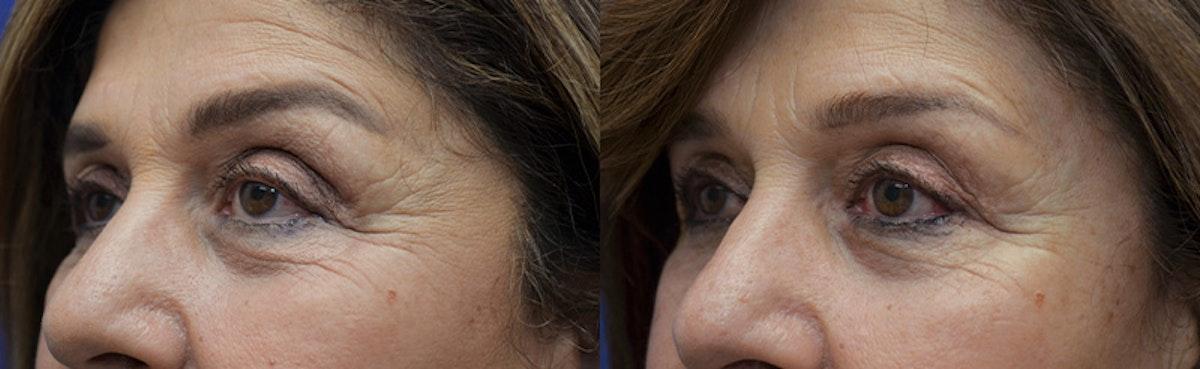 Upper Eyelid Ptosis Repair Gallery - Patient 5063164 - Image 3