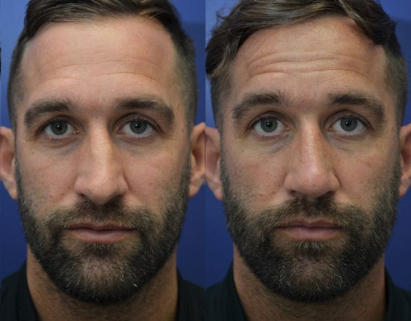 Rhinoplasty (Nose Reshaping) Gallery - Patient 5289018 - Image 1