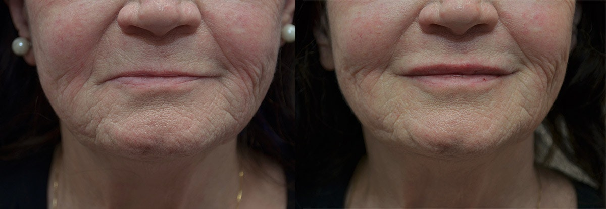 Lip Enhancement Gallery - Patient 5724924 - Image 1