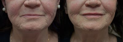 Lip Enhancement Gallery - Patient 5724924 - Image 1