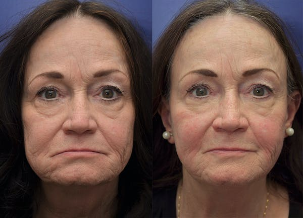 Non-Surgical Soft Tissue Fillers Gallery - Patient 5724929 - Image 1