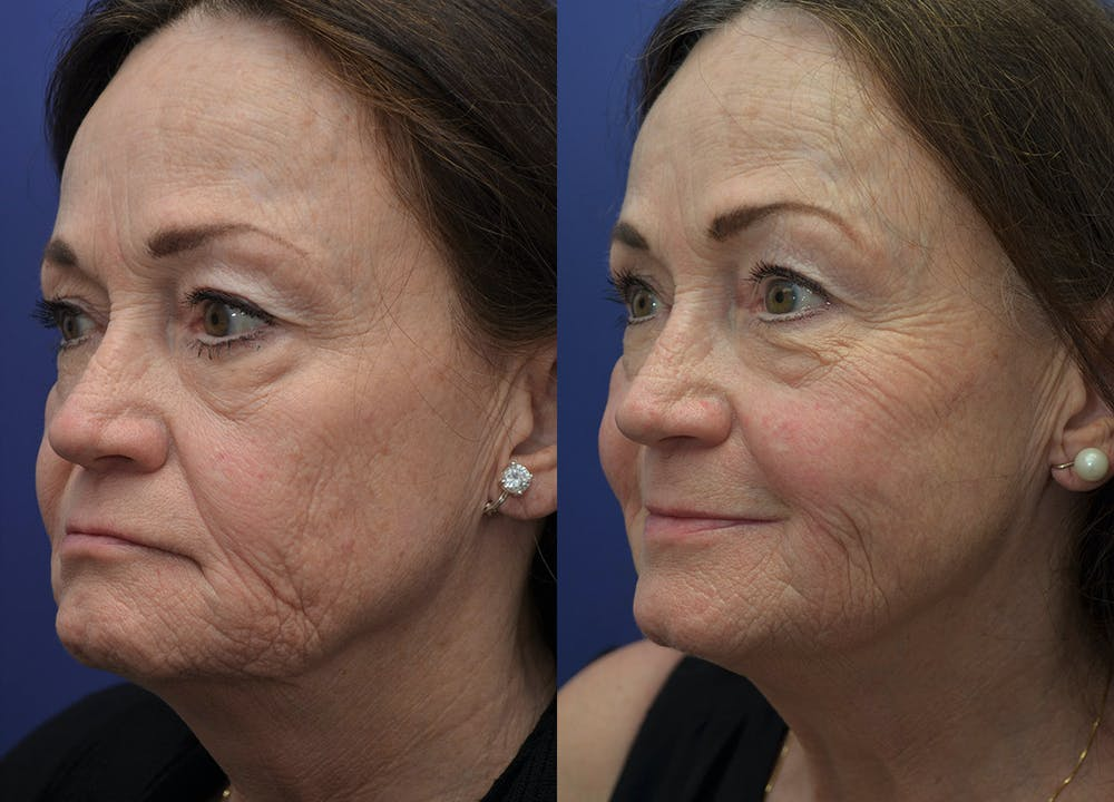 Non-Surgical Soft Tissue Fillers Gallery - Patient 5724929 - Image 2