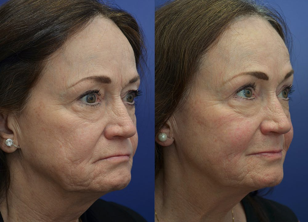 Non-Surgical Soft Tissue Fillers Gallery - Patient 5724929 - Image 3