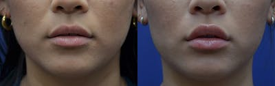 Non-Surgical Soft Tissue Fillers Gallery - Patient 5724946 - Image 1