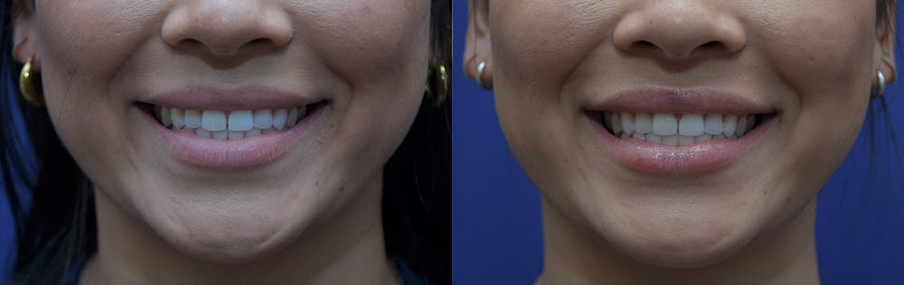 Non-Surgical Soft Tissue Fillers Gallery - Patient 5724946 - Image 3