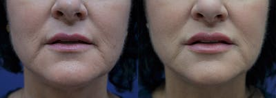 Non-Surgical Soft Tissue Fillers Gallery - Patient 5724947 - Image 1