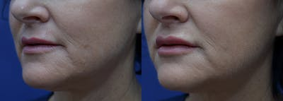 Non-Surgical Soft Tissue Fillers Gallery - Patient 5724947 - Image 2