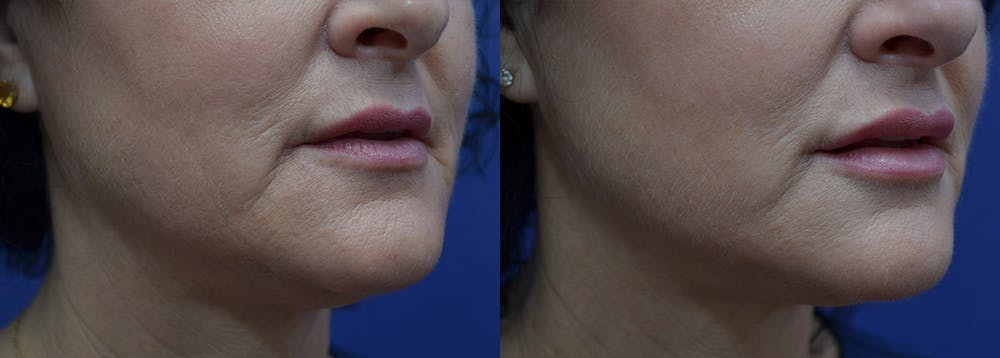 Non-Surgical Soft Tissue Fillers Gallery - Patient 5724947 - Image 3