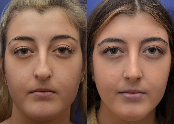 Rhinoplasty (Nose Reshaping) Gallery - Patient 5788711 - Image 1